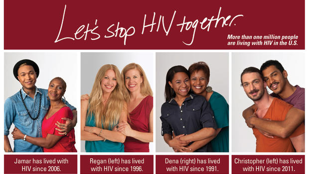 symptoms Gay hiv and aids